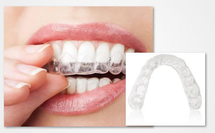 Clear Aligner System