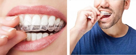 Get straighter teeth with  Clear Aligners